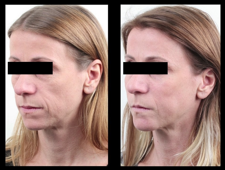 avon anew reversalist before and after