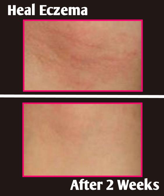 eczema body wash