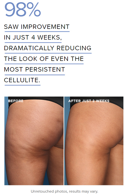fight cellulite